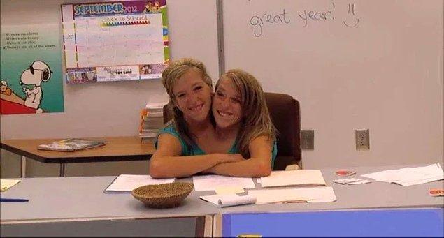 11. Doğumda hayatta kalma şansları sadece 30 milyonda 1 olan yapışık ikizler, şimdi öğretmenlik yapıyorlar.