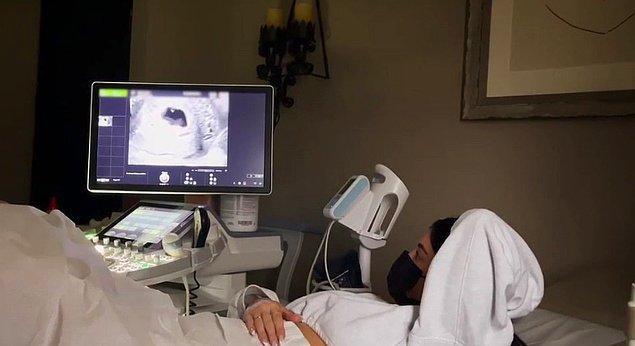 Ve bir de Kylie'nin ultrason görüntüleri...