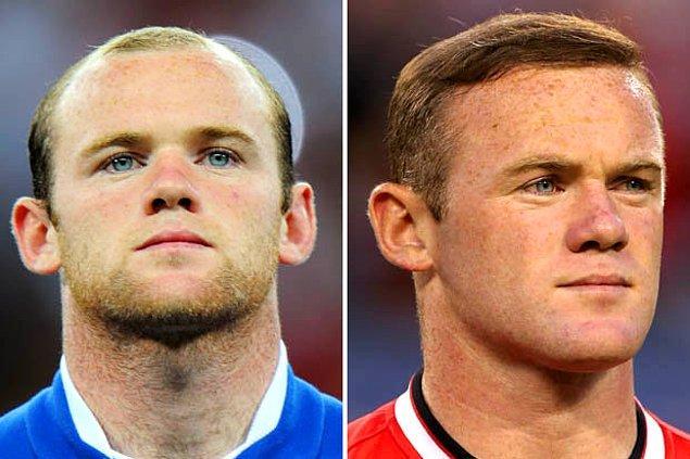 3. Liverpool doğumlu İngiliz futbolcu Wayne Rooney de saçlarına protez yaptırmış.