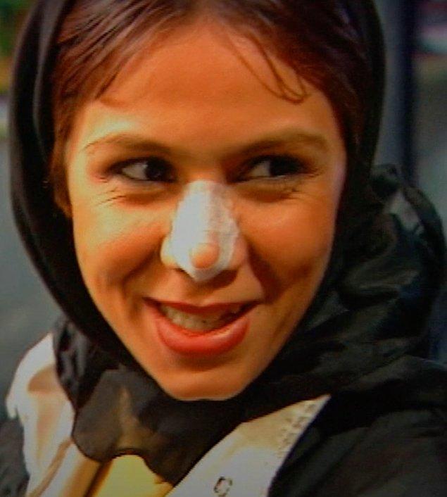 8. Burun bandajı - İran