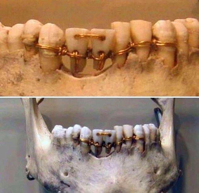 4. 4 bin yıllık bir mumyada rastlanan diş teli: