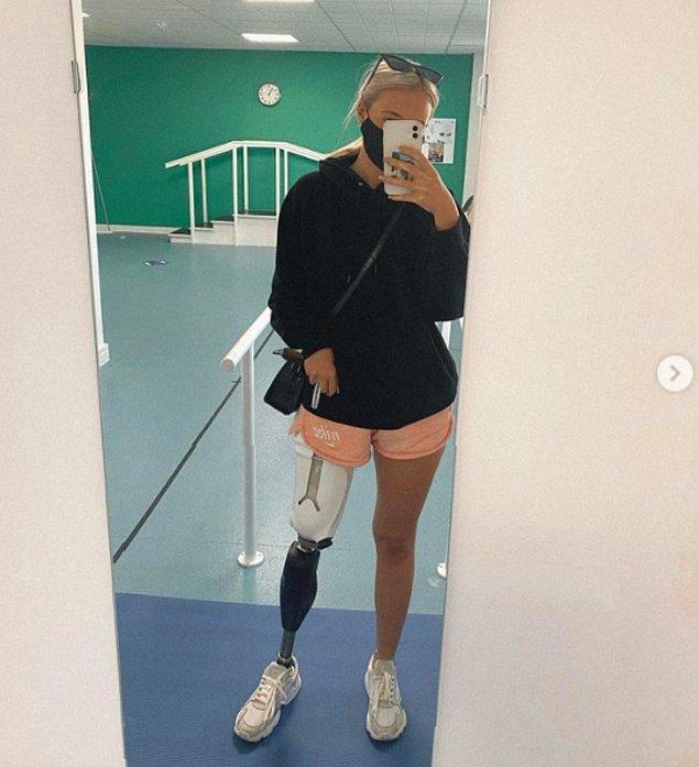 Kazanın ardından protez bacak taktıran Leah, hala düzenli olarak fizyoterapi görüyormuş.