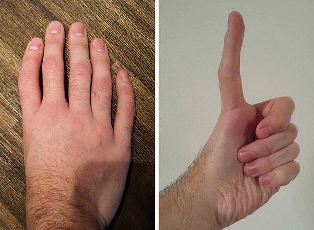 1. Sağ elinde beş adet parmağı olduğu halde baş parmağı bulunmayan bu adamın sol elinde upuzun bir baş parmağı var !