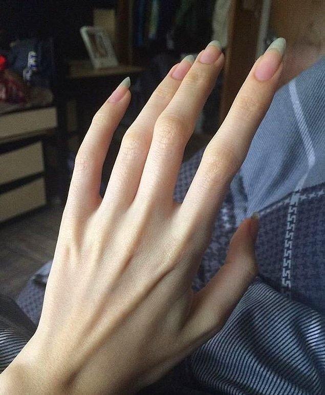 """16. """"Örümcek Parmaklar"""" olarak adlandırılan Araknodaktil parmak sendromu."""