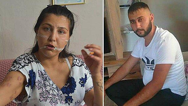 104 Yerinden Bıçaklanan Kadın: 'Beni Bıçakladıktan Sonra Başımda Sigara İçti'