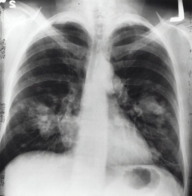 14. Sırtüstü yatarak ciğerlerimizi tamamen açarsak bir tenis sahasını kaplayabilecek boyuta ulaşır.