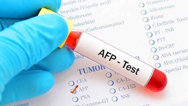 AFP: Alfa- Fetoprotein Nedir? Yüksekliği ve Düşüklüğü Ne Anlama Gelir? Değerleri Kaç Olmalıdır?