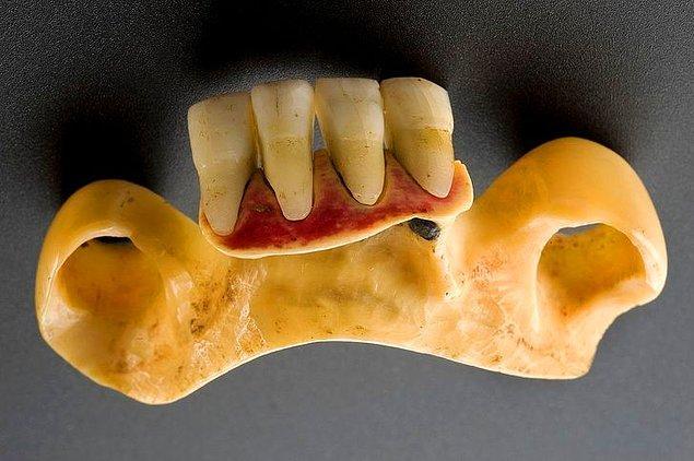 11. Takma dişler gerçek dişlerden yapılıyordu.