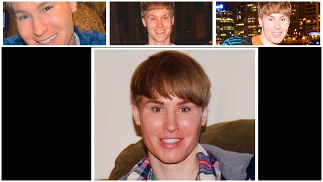 Justin Bieber'a benzeme bağımlılığı 28 yaşında başlayan Toby, ameliyatlardan önce büyük bunalımdaymış.