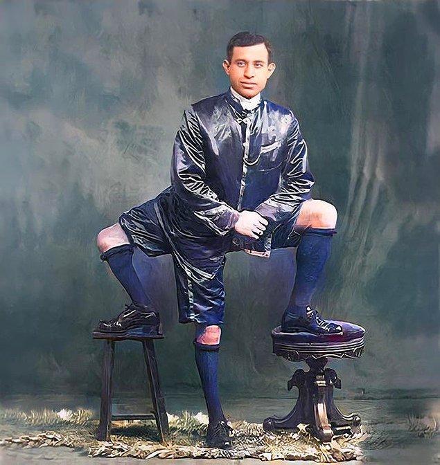 14. 3 bacağı, 16 parmağı ve 2 penisi olan Frank Lentini: