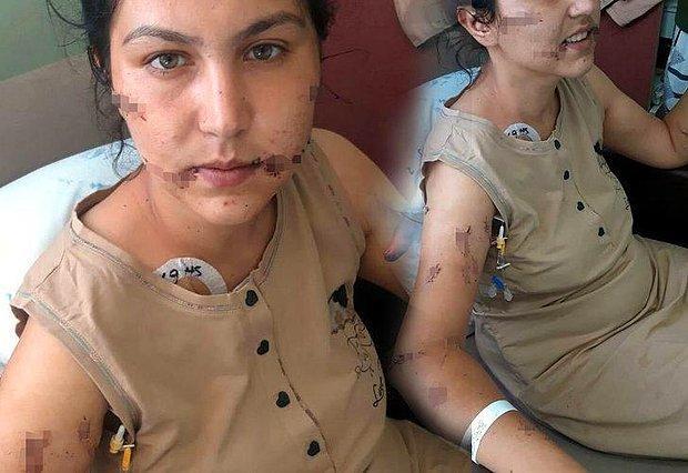104 Yerinden Bıçakladı, Ölmesini Bekledi: Vahşetin Ardından Kan Donduran İddia