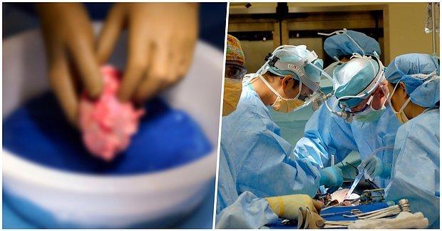 Tıp Dünyasında Bir İlk! Domuzdan Alınan Böbrek Bir İnsana Nakledildi ve Başarı ile Sonuçlandı