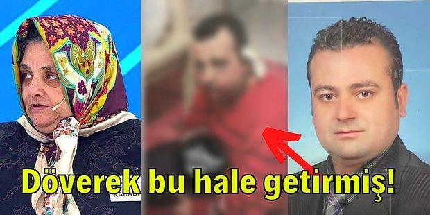 Ablasının Sevgilisi Tarafından Dövülerek Öldürülen Radyocu Mehmet'in Yaralı Haldeki Görüntüsü Ortaya Çıktı!